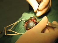 Eye Graft Surgery